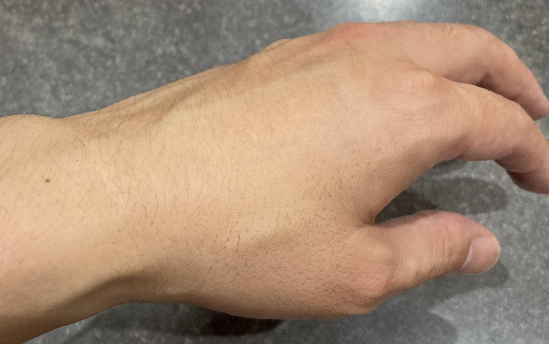 ベルブランのレビュー&口コミ ニキビ跡の赤いシミケアに使えるブースター美白美容液